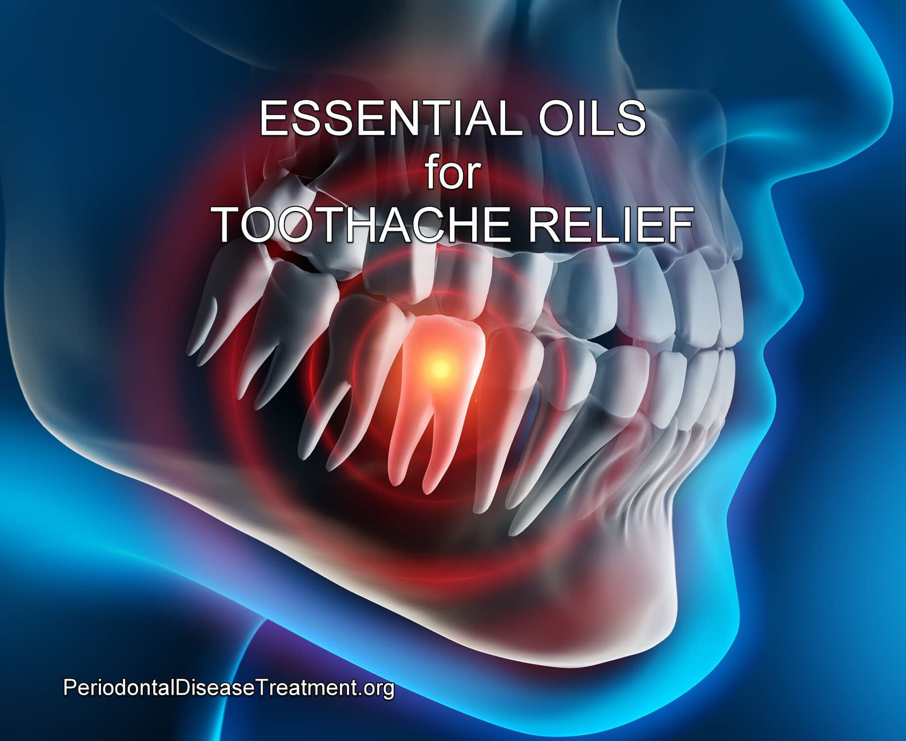 essential oils for toothache
