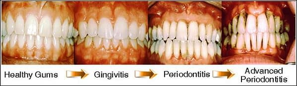 periodontitis treatment