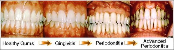 how to reverse periodontal disease naturally