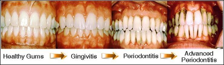 treat gingivitis